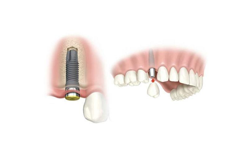 impianto dentale con vite