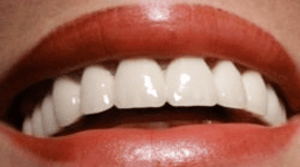 estetica dentale  udine
