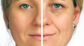 rringiovanimento del viso, cura delle rughe