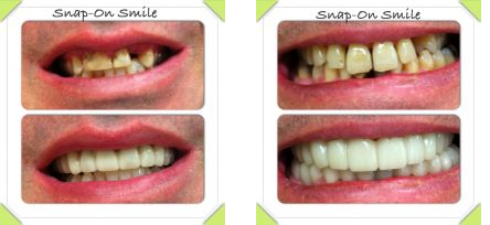 Restorative dentistry in Fairport, NY to put the smile back on your face!