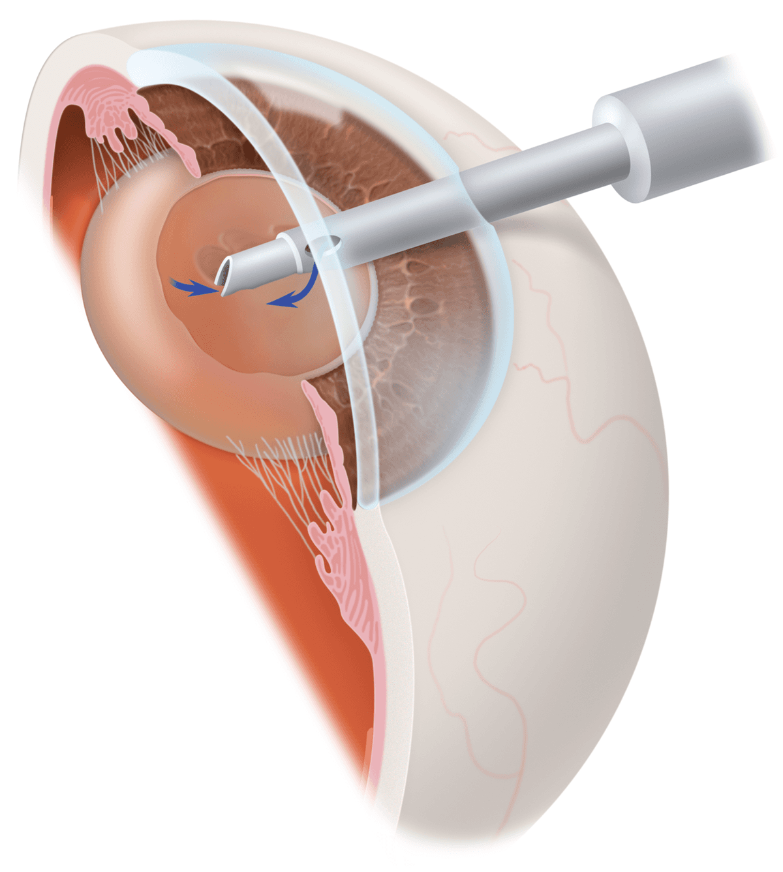 Cataract Operation Raleigh, NC