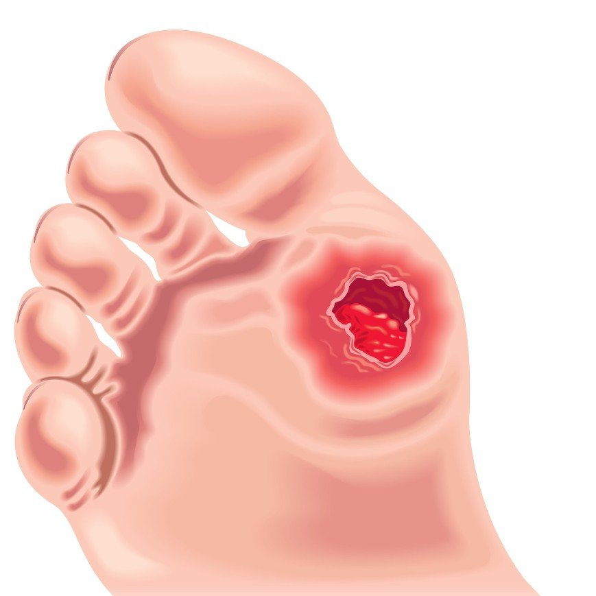 Foot Ulcers : Causes, Symptoms and Treatment Options