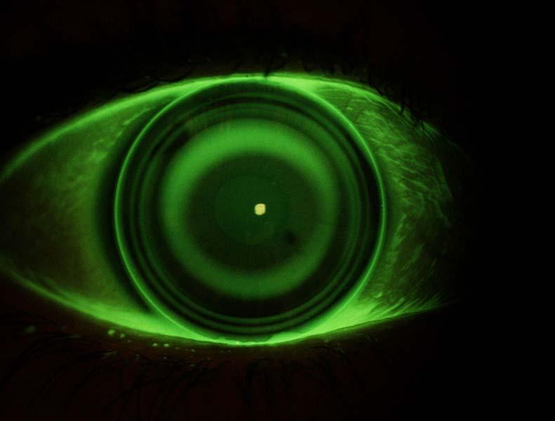 Un occhio visto con visione notturna