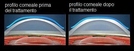 Immagine del prima e dopo il trattamento ortocheratologico