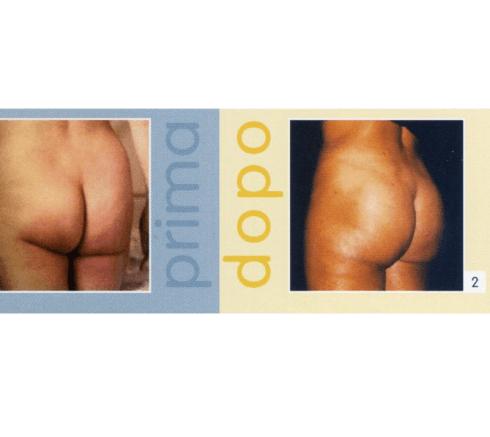 Prof. Franco Papadia, Chirurgo Plastico, Parma, Gluteoplastica