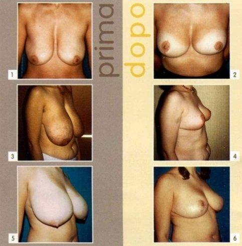 mastoplastica riduttiva seno