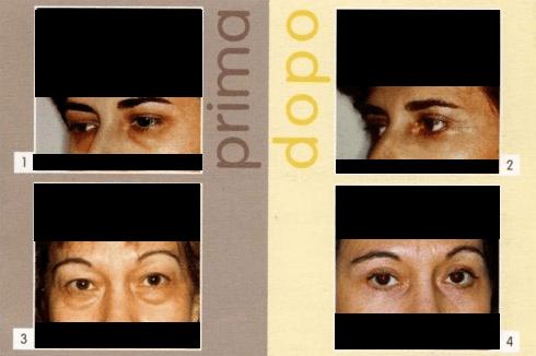 Professor Papadia, Chirurgo Platstico Parma,Blefaroplastica