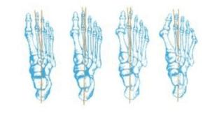 realizzazione plantari ortopedici fermo