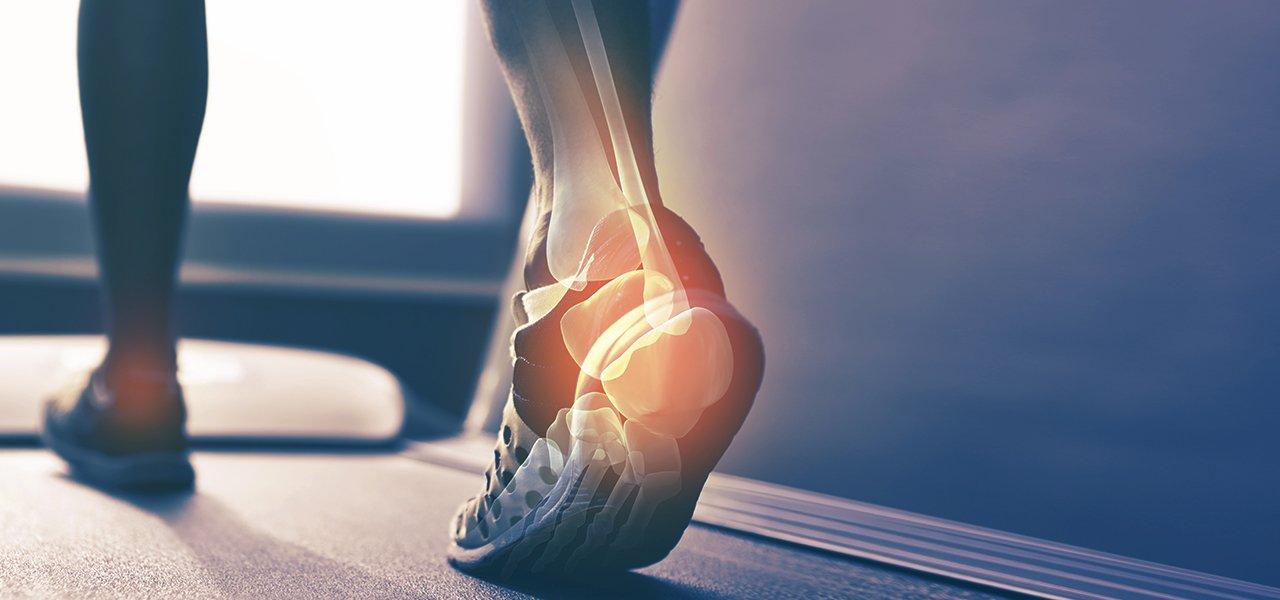 graphic of leg