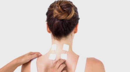 Acupuncture and kinesio taping