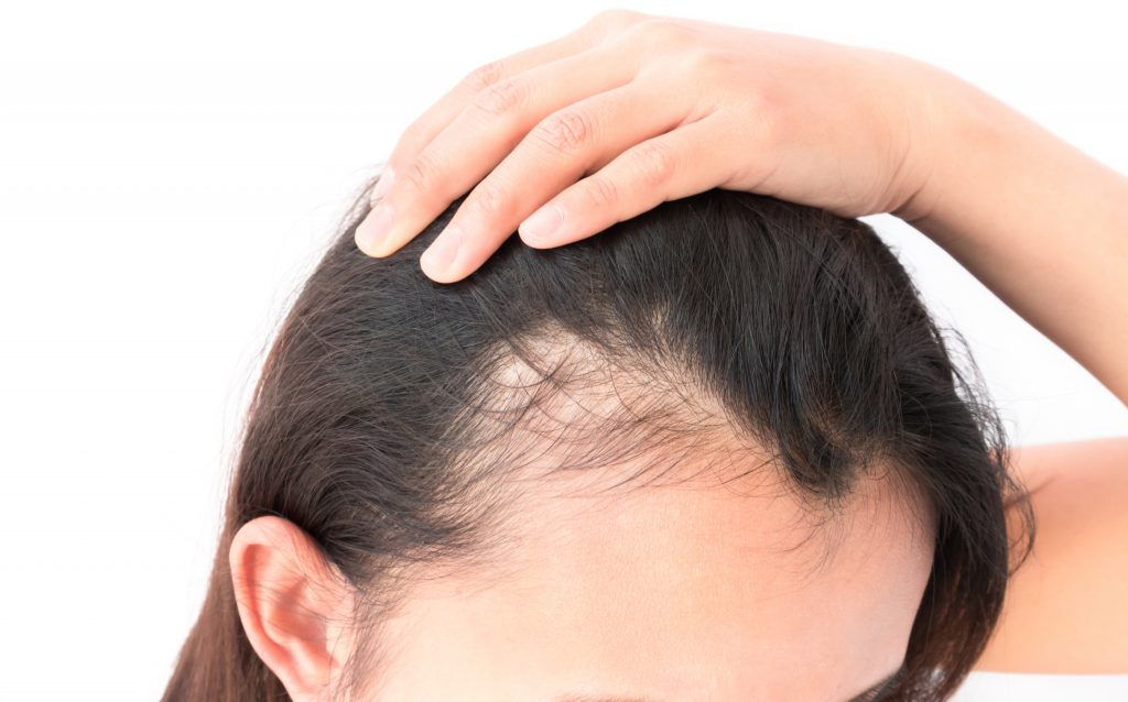 Hair progesterone growth and Estrogen and