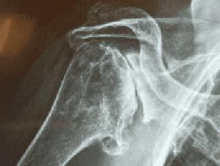 radiografia spalla