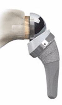 protesi inversa
