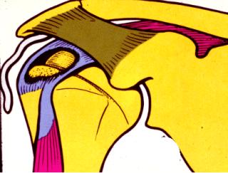 lesione cuffia del rotatore