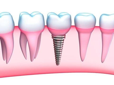 trattamenti di implantologia