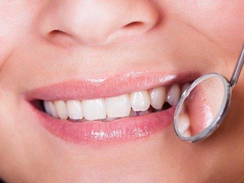 trattamenti per l'igiene orale