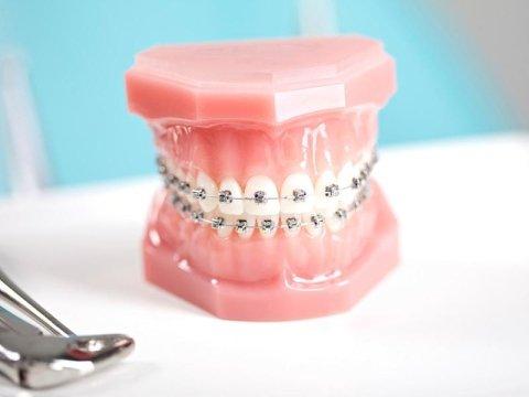 protesi dentarie fisse e mobili