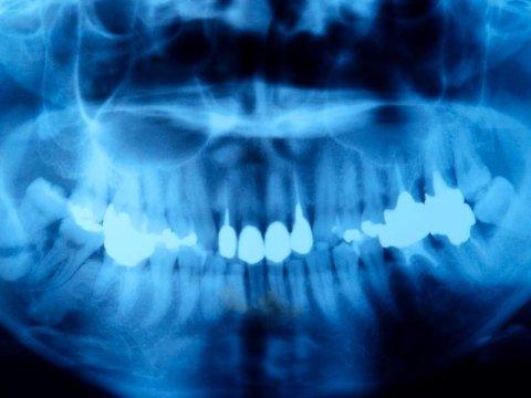 trattamenti di chirurgia parodontale
