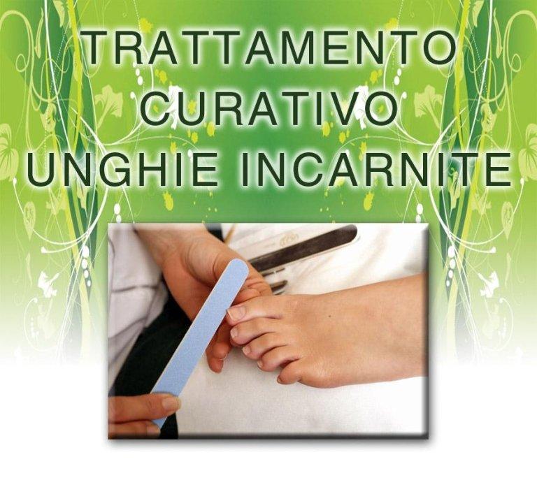 trattamento curativo unghie incarnite