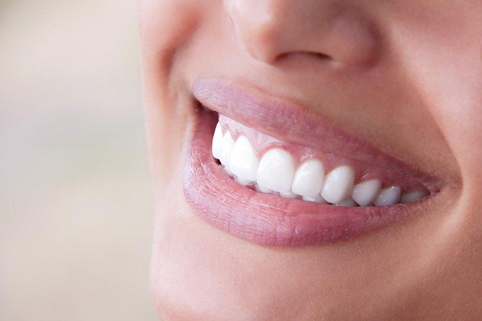 Cosmetic Dentist Grandville & Grand Rapids, MI
