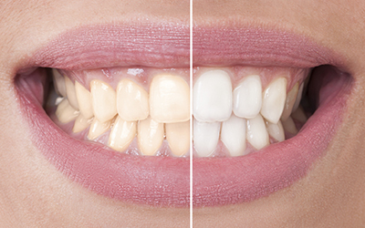 Cosmetic Dentist Grand Rapids & Cascade, MI