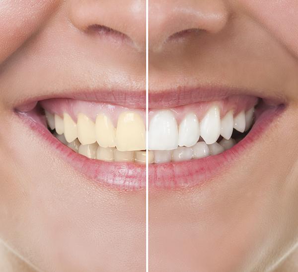 Cosmetic Dentist Grandville & Cascade, MI