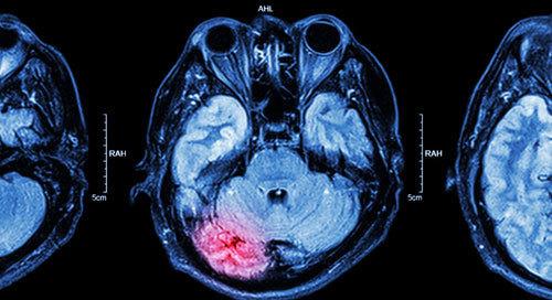 MRI of brain : brain injury