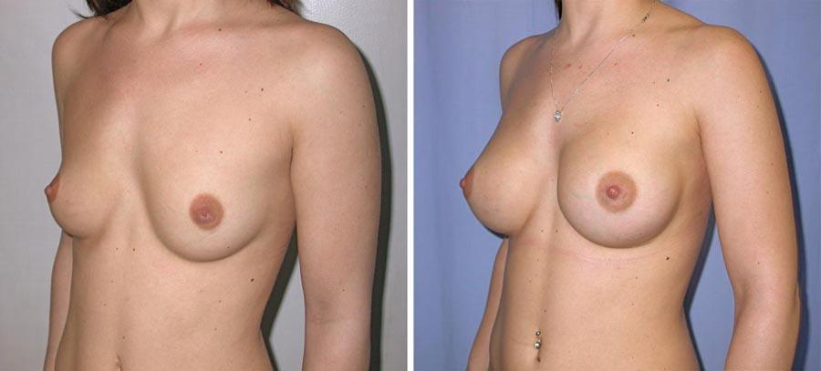 esempio 5 di seno sottoposto a mastoplastica di aumento