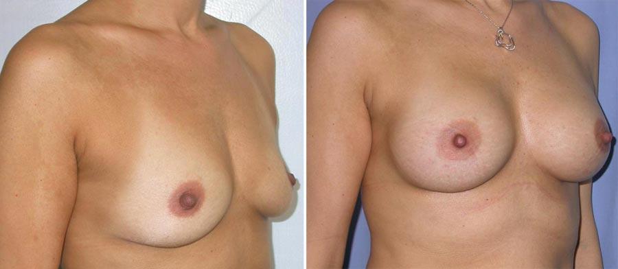esempio 15 di seno sottoposto a mastoplastica di aumento