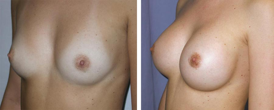 esempio 14 di seno sottoposto a mastoplastica di aumento