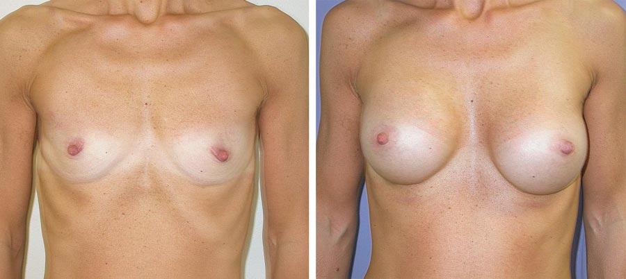 esempio 13 di seno sottoposto a mastoplastica di aumento