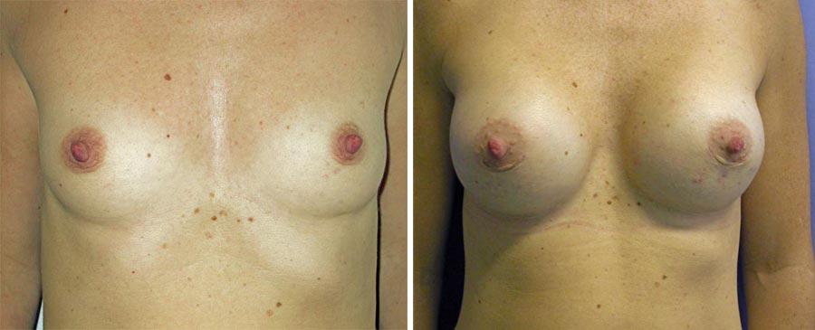 esempio 12 di seno sottoposto a mastoplastica di aumento