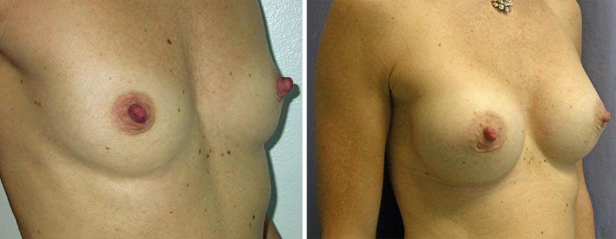 esempio 9 di seno sottoposto a mastoplastica di aumento