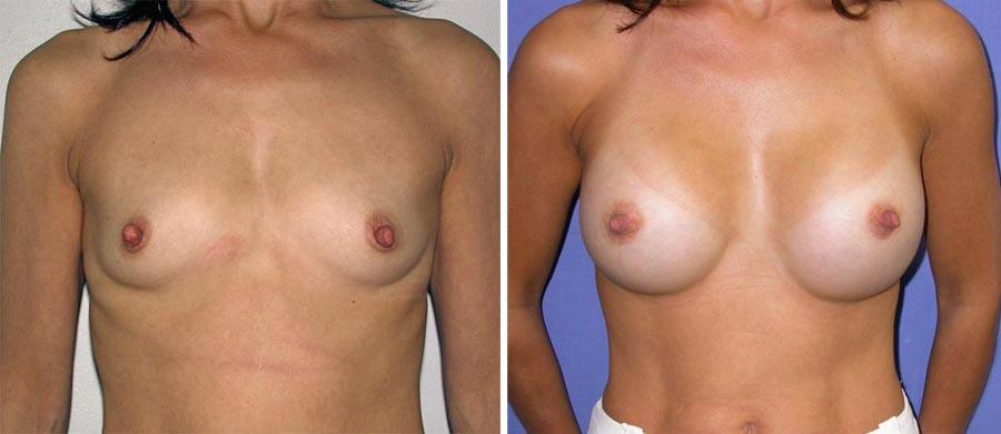 esempio 11 di seno sottoposto a mastoplastica di aumento