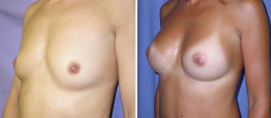 esempio 4 di seno sottoposto a mastoplastica di aumento