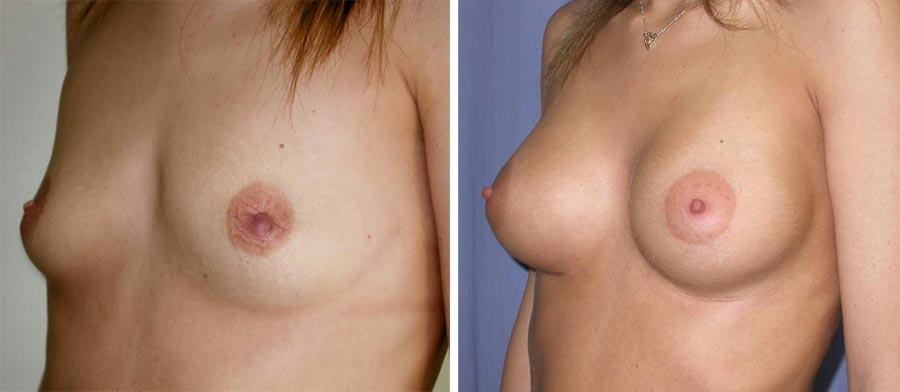 esempio 3 di seno sottoposto a mastoplastica di aumento