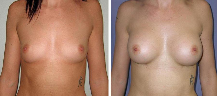 esempio 2 di seno sottoposto a mastoplastica di aumento