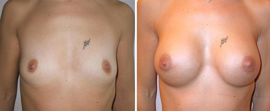esempio 8 di seno sottoposto a mastoplastica di aumento