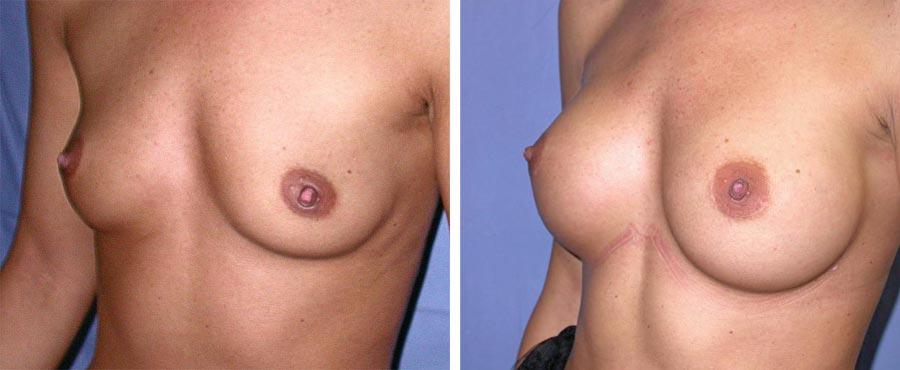 esempio 7 di seno sottoposto a mastoplastica di aumento