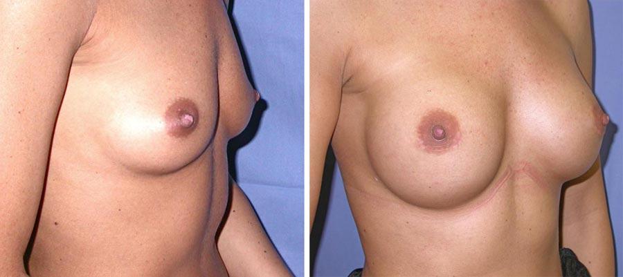 esempio 6 di seno sottoposto a mastoplastica di aumento