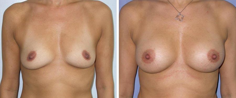 esempio 10 di seno sottoposto a mastoplastica di aumento