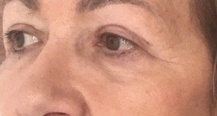 risultato su paziente di intervento di blefaroplastica - 6