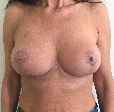 paziente sottoposta a mastopessi - esempio 2