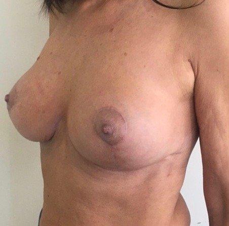 paziente sottoposta a mastopessi - esempio 4