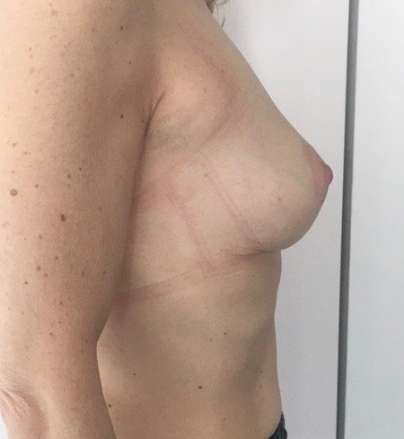 paziente sottoposta a mastopessi - esempio 8