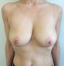 paziente sottoposta a mastopessi - esempio 5
