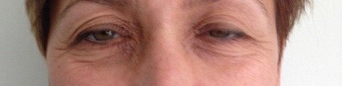 risultato su paziente di intervento di blefaroplastica - 1