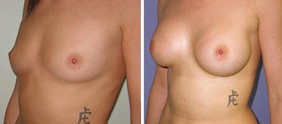 esempio 1 di seno sottoposto a mastoplastica di aumento