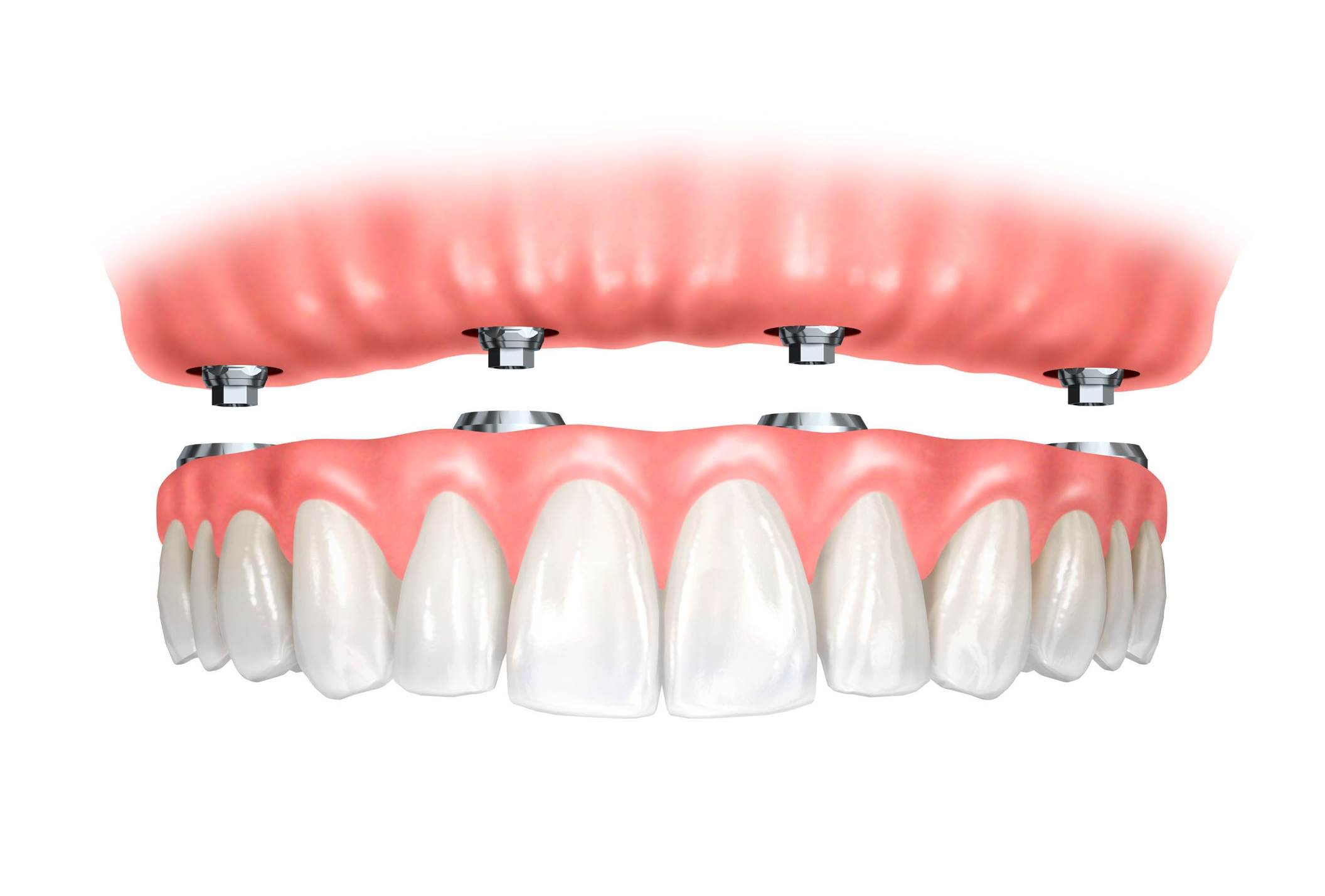 Implant retained dentures in WA