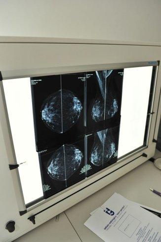 ambulatori di radiologia, servizi sanitari ambulatoriali